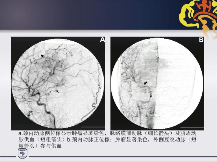 中枢神经细胞瘤治疗策略PPT