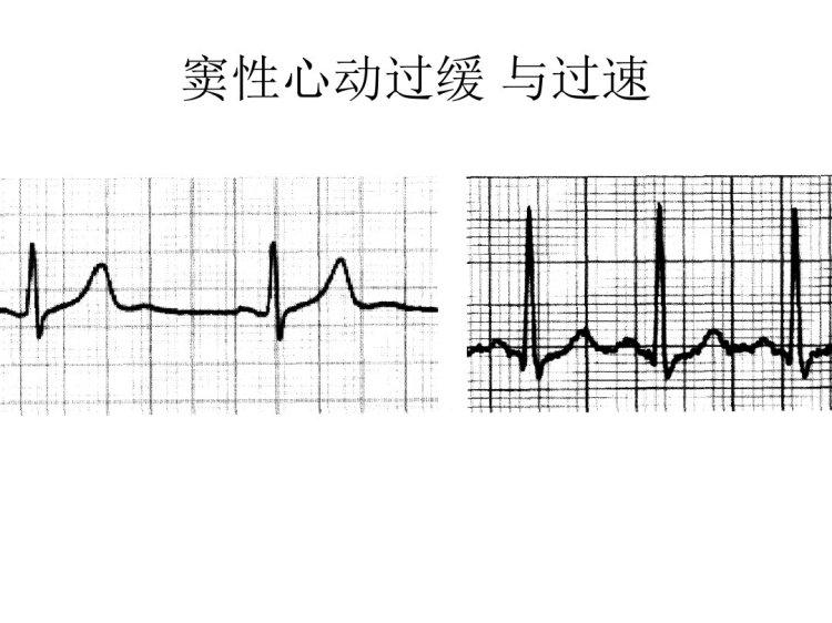 心电图图解PPT