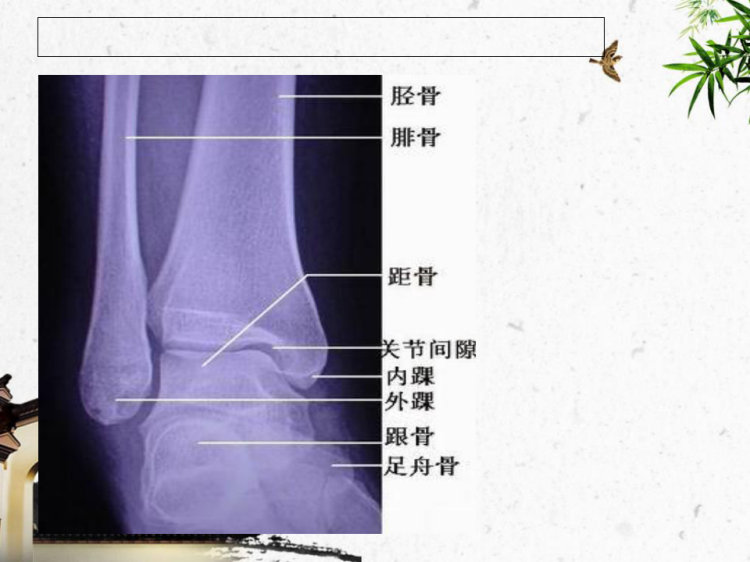 踝关节骨折护理PPT
