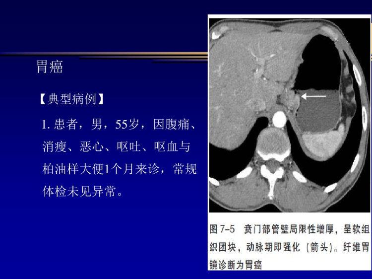 胃癌CT影像诊断PPT