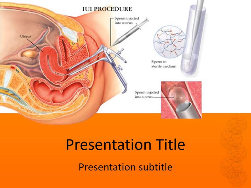 可视手术医疗PPT模板